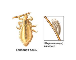 паразиты коже головы человека