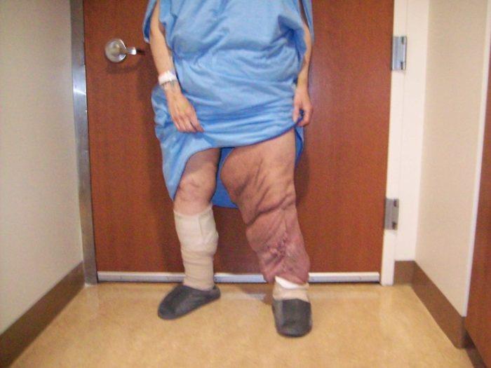 фото слоновая болезнь ног