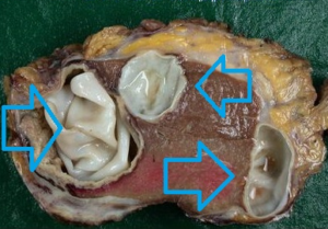 глисты в печени человека симптомы фото