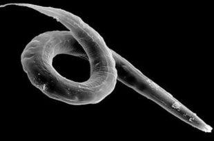 анализы при паразитах в организме