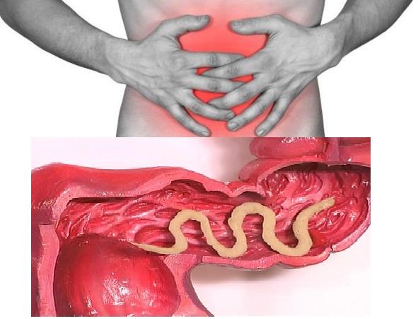 Попадание аскарид в организм человека происходит при