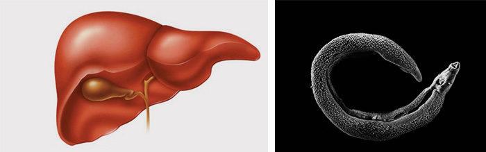 Анализ крови на гельминты у ребенка как сдавать