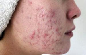 демодекоз лечение на лице препараты фото