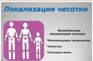 Чесотка: симптомы, лечение, признаки у взрослых