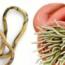 Органы пораженные аскаридами