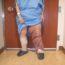 Слоновая болезнь ног